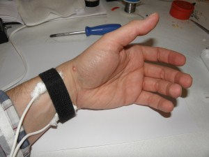 Wrist electrodes for Bob Beck blood electrification device