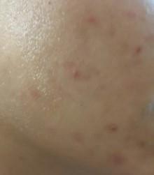 1 skin before